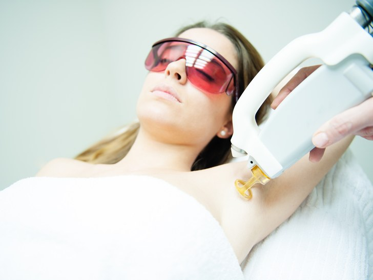 Brazilian laser hair removal