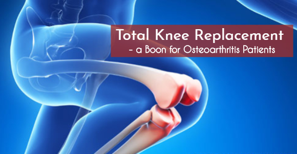 Total Knee Replacement a Boon for Osteoarthritis Patients