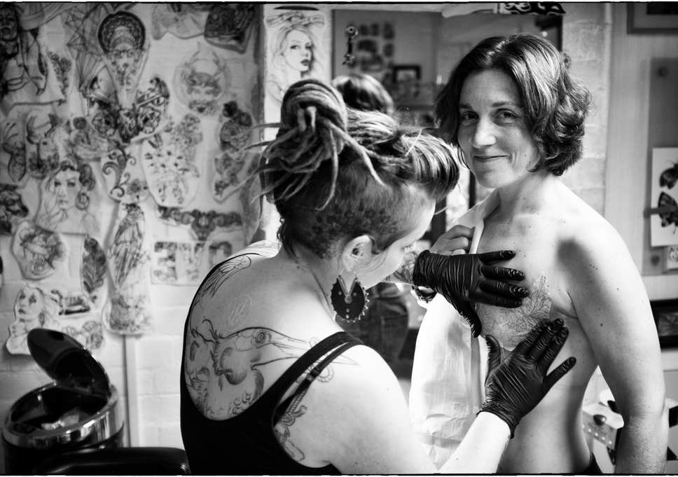 Best Breast Cancer Areola Tattooing Solutions