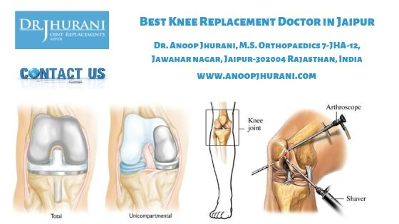 Best Knee Replacement Doctor in Jaipur