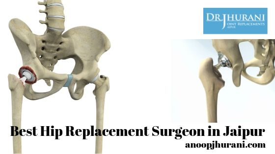 Best Hip Replacement Surgeon in Jaipur