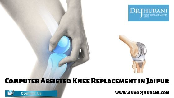 Computer Assisted Knee Replacement in Jaipur