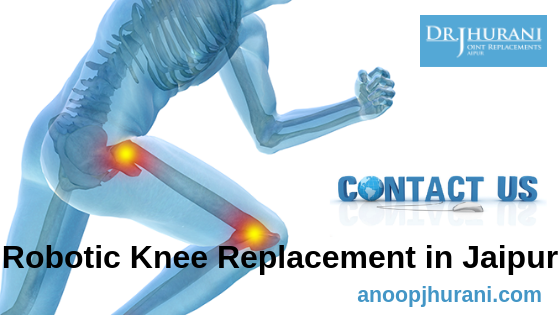 Robotic Knee Replacement in Jaipur