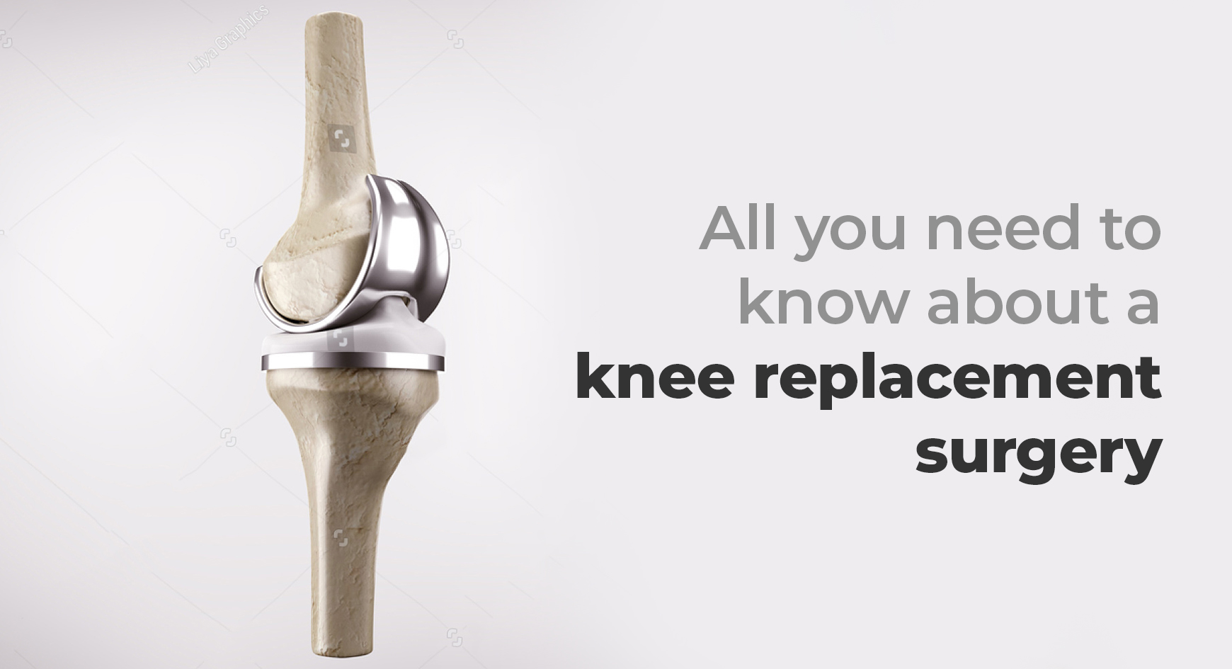 All you need to know about a knee replacement surgery