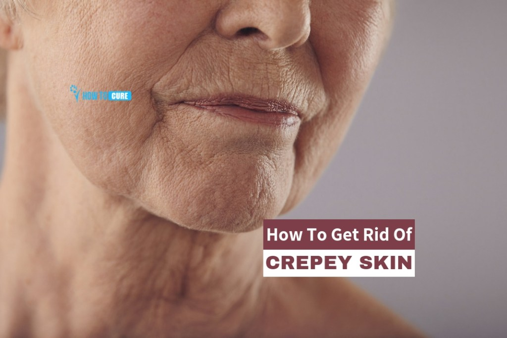 https://howtocure.com/how-to-get-rid-of-crepey-skin/