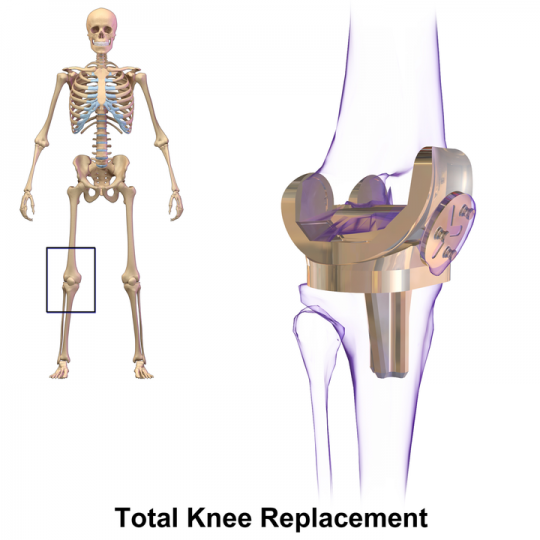 Knee Replacement Surgeons in Delhi