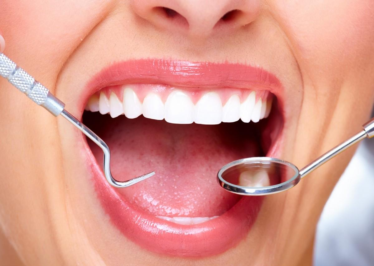 dentist in baulkham hills